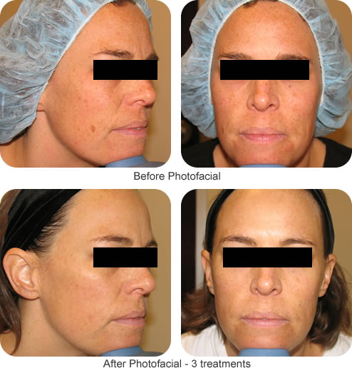 Before and After Photofacial treatments